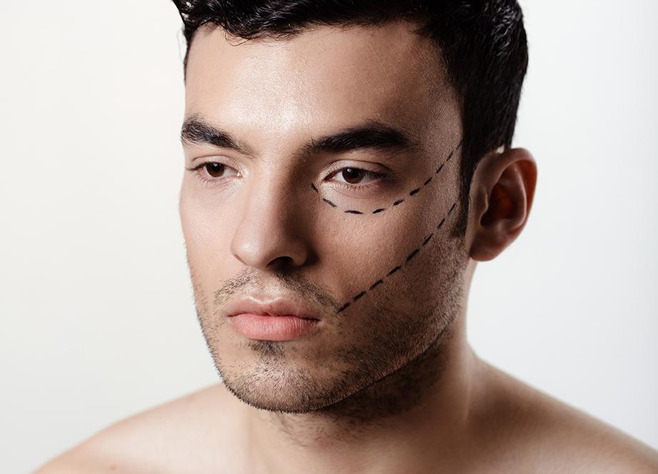 Les hommes et la chirurgie esthétique : un intérêt grandissant