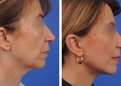 lifting-visage-p1