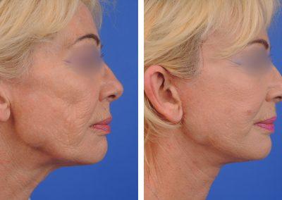 lifting-visage-p2