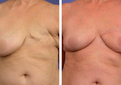 reconstruction-mammaire-p1