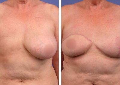reconstruction-mammaire-p2