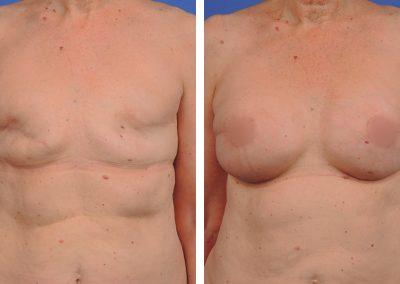 reconstruction-mammaire-p3