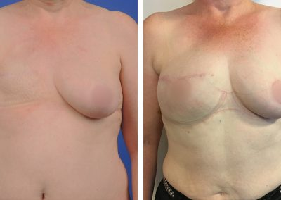 reconstruction-mammaire-p4