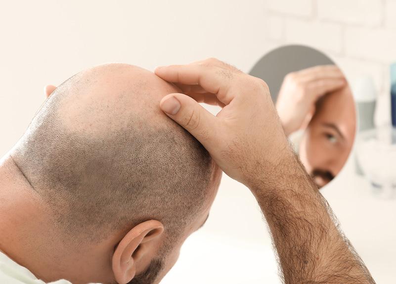 La micro-greffe de cheveux (FUE et FUT)